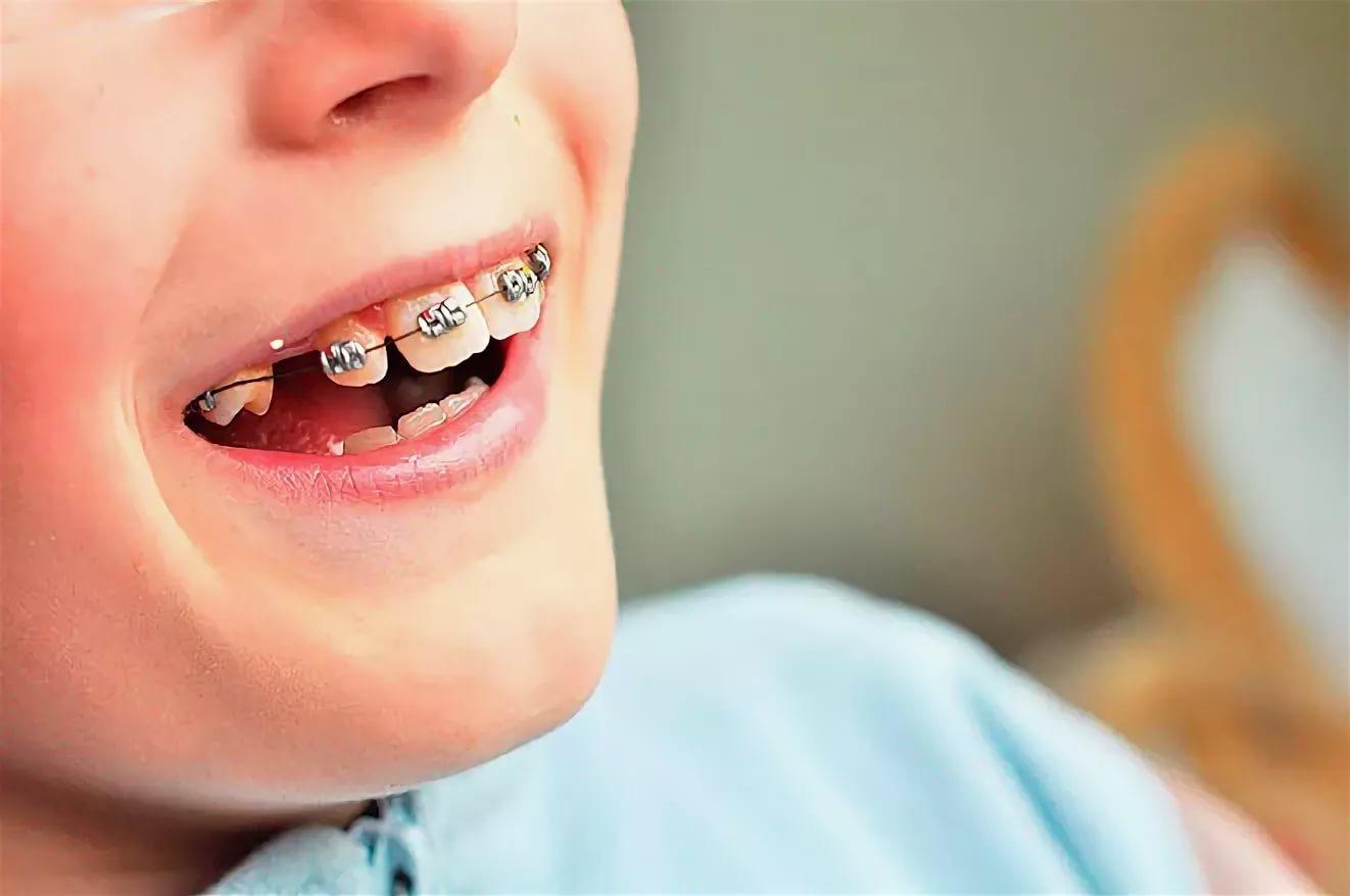 Девушки с пластинками для зубов